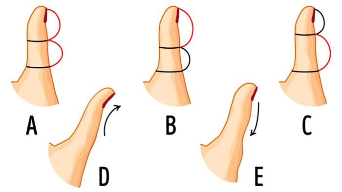 Hình dạng ngón tay cái tiết lộ điều gì về tính cách con người bạn